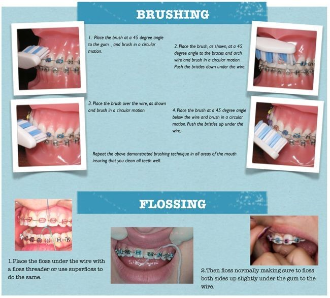 how-to-take-care-braces